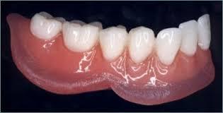 Prothèse dentaire avec base molle (coussin)